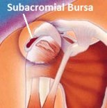 Inflammation of one of the shoulder bursa can lead to pain and restricted movement