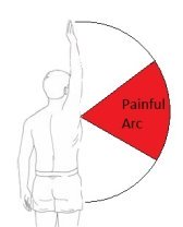 Shoulder impingement syndrome typically causes a painful arc with movement