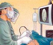 Arthroscopic Capsular Release: a surgical frozen shoulder treatment