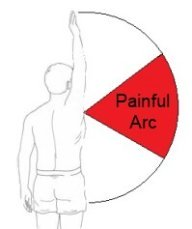 A painful arc is a common feature of shoulder impingement.  Shoulder movement is usually full and only the middle range of movement is painful (shown in red)