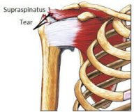 Left shoulder pain often develops due to a tear in one of the rotator cuff muscles