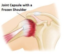 The effect on the joint capsule with a frozen shoulder (aka adhesive capsulitis)