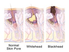 Different types of comedones - whitehead and blackhead, common causes of shoulder acne.  Blausen.com staff