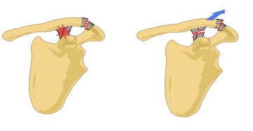 Acromioclavicular Joint injuries are a common cause of collar bone pain near the shoulder