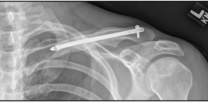 Intramedullary fixation of a clavicle fracture