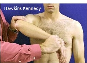 Hawkins Kennedy test for supraspinatus tendonitis of the shoulder