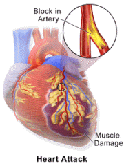 Left arm pain accompanied by dizziness, shortness of breath and a crushing sensation in your chest can be a sign of a heart attack
