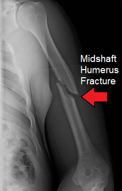 X-ray showing a midshaft humerus fracture