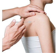 Steroid injections can be a useful frozen shoulder treatment to reduce pain and inflammation