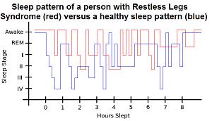 Restless limbs often cause sleep disturbance making it harder to get to sleep and stay asleep