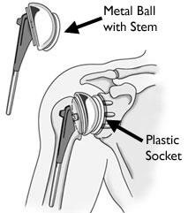 Total shoulder replacement surgery may be necessary after a proximal humerus fracture