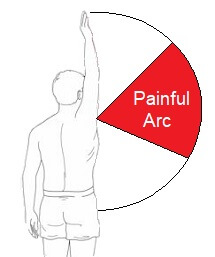 Shoulder impingement syndrome often presents with a painful arc of movement