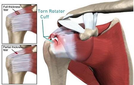 Torn Rotator Cuff Symptoms And Treatment Shoulder Pain