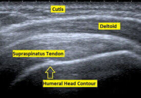Ultrasound scan showing the supraspinatus tendon of the rotator cuff