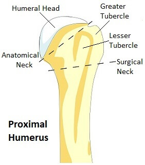 proximal humerus fracture causes treatment recovery