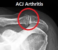 ACJ Arthritis: Causes, symptoms, diagnosis and treatment for this cause of collar bone pain
