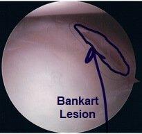 Una lesión de Bankart observada durante una artroscopia de hombro