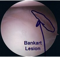 A Bankart Lesion seen during a shoulder arthroscopy