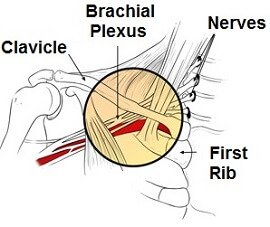 The brachial plexus is found at the shoulder