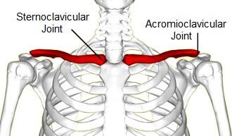 Collar Bone Pain: Common Causes & Symptoms