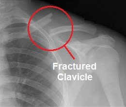 Clavicle fractures are the most common cause of collar bone pain