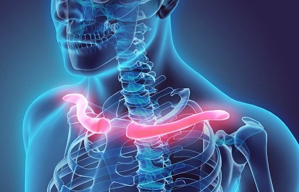 Collar Bone Pain: Causes, Symptoms, Diagnosis & Treatment Options for Clavicle Pain
