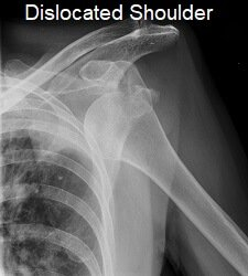 Recurrent shoulder dislocations are a common problem with a Bankart lesion due to the decreased stability