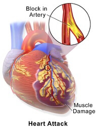 Left upper arm pain can be caused by heart problems - this is a medical emergency