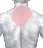 Common location of pain with a heart attack - upper back, between the shoulder blades