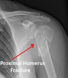 Proximal humeral fractures are the most common type of shoulder fracture in the elderly