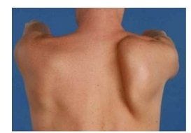 A winged scapula is often visible with brachial neuritis, caused by muscle wasting