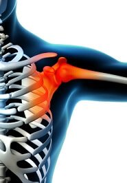 One of the common symptoms of a SLAP tear is pain and a feeling of instability when lifting the arm above the head
