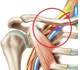 Shoulder Pain Causes: Brachial Neuritis aka Parsonage Turner Syndrome
