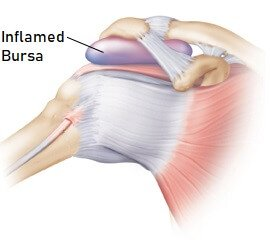 Causes of Shoulder Pain: Shoulder Bursitis - Symptoms, Diagnosis & Treatment