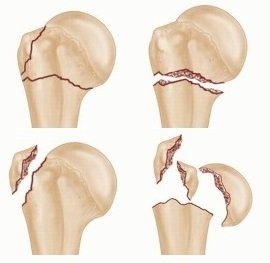 Causes of Shoulder Pain: Shoulder Fractures - Symptoms, Diagnosis & Treatment