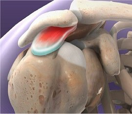 Shoulder Pain Causes: Impingement Syndrome - Symptoms, Diagnosis & Treatment