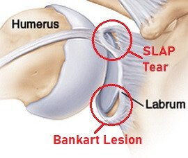 Causes of Shoulder Pain: Labrum Tears - Symptoms, Diagnosis & Treatment