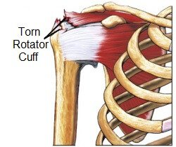 Shoulder pain often develops due to a tear in one of the rotator cuff muscles
